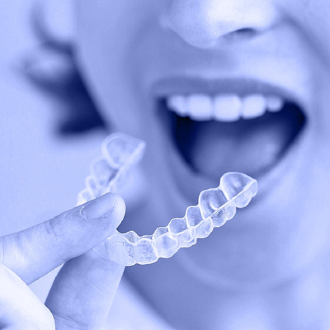 יישור שיניים בשיטת אינויזיליין