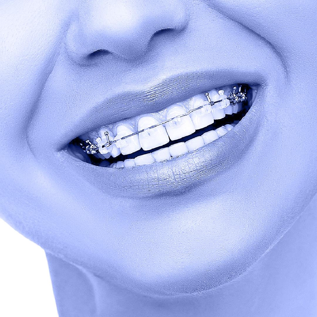יישור שיניים באמצעות סמכים שקופים - תמונה