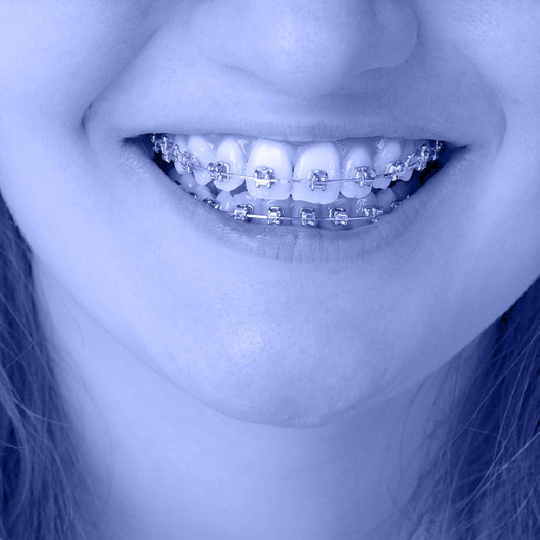 יישור שיניים בשיטת דמון
