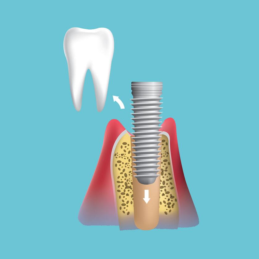 השתלת שיניים שלב 1