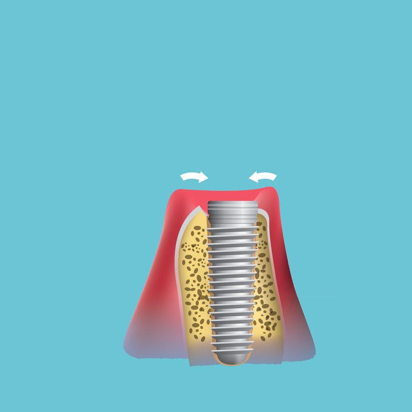 השתלת שיניים שלב 2