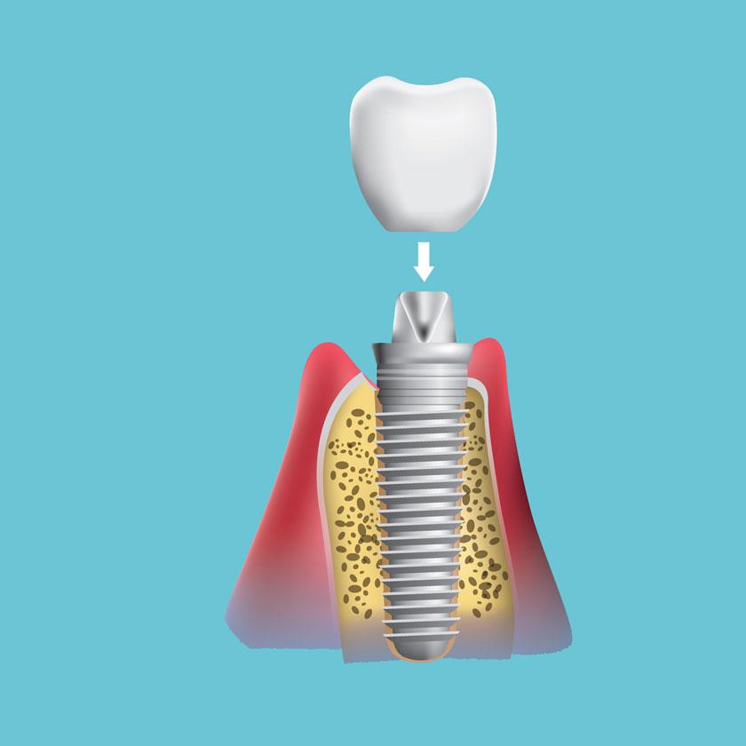 השתלת שיניים שלב 4